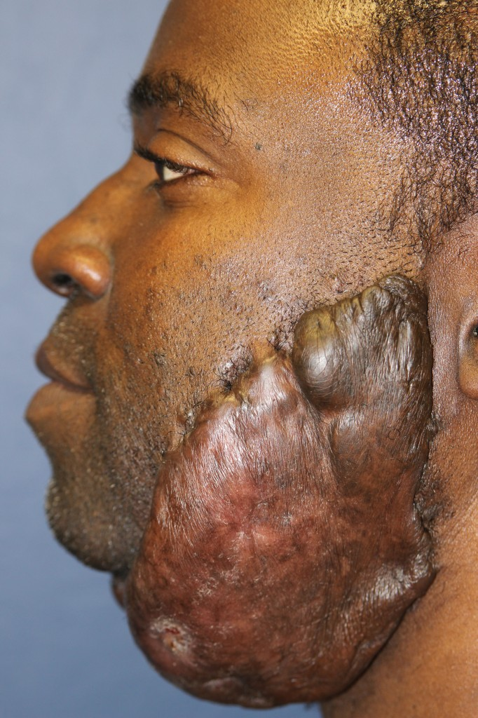 Massive recurrent facial keloid - left side