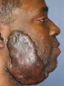 Robin Tunney Facial Scar 93