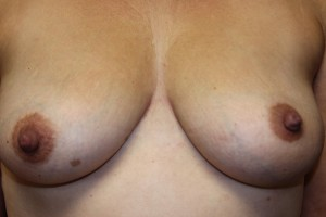 F) After plastic surgery correction of inverted left nipple