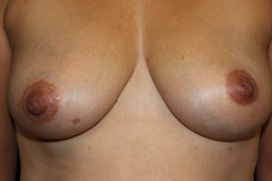 E) Before surgical correction of inverted left nipple