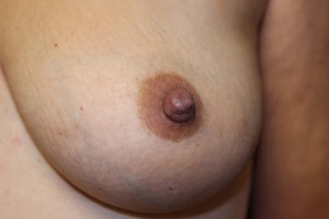 B) After correction of inverted left nipple