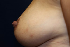 D) After correction of inverted nipple