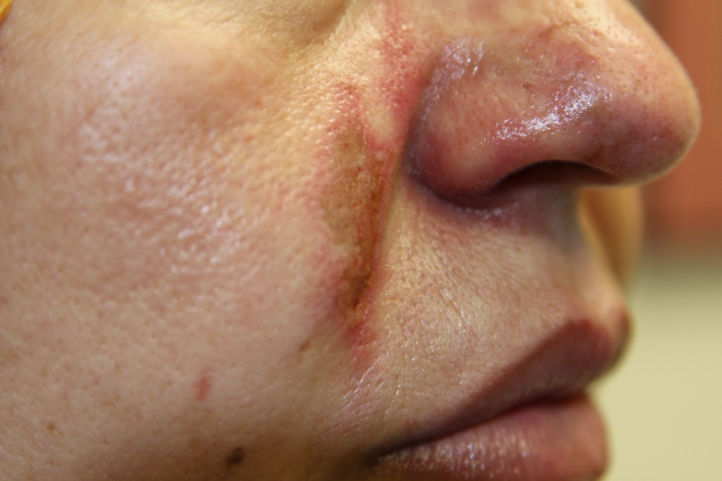Accidental injection of Juvederm into a facial artery resulting in skin breakdown and compromise of blood flow to the cheek and nose