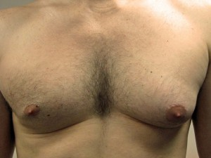 A) Enlarged left breast