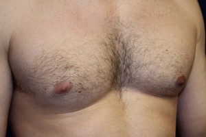 D) L. male breast reduction after surgery - oblique view