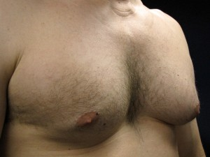C) Left breast before surgery - oblique view