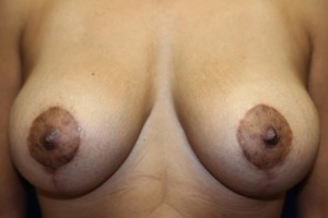 B) After mastopexy and breast augmentation