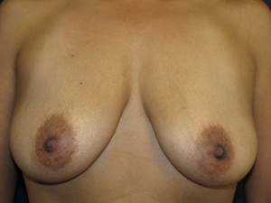 A) Droopy breasts before surgery