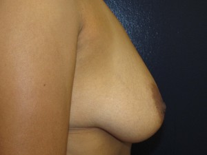 E) Before surgery - side view