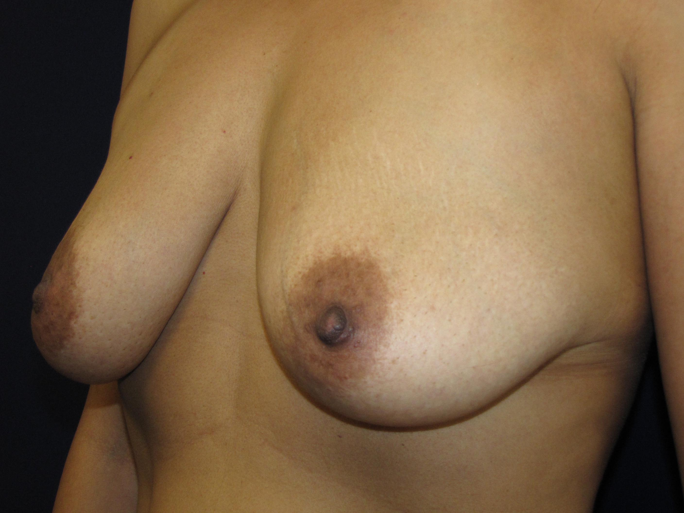 big breast implants on older women