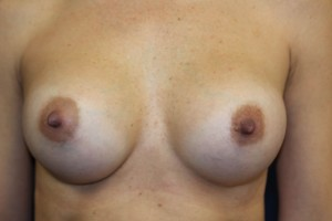 B) After breast augmentation - frontal view