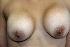 A) Deformed breasts prior to explantation