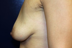 D) After explantation - side view