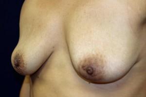 F) After explantation - oblique view