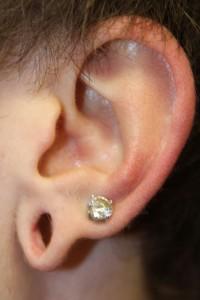 A) Left gauged earlobe