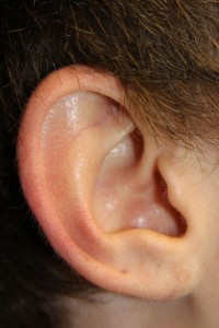 D) Earlobe after surgery