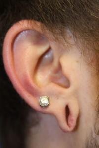 C) Right gauged earlobe
