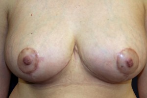 B) 2 months after breast reduction