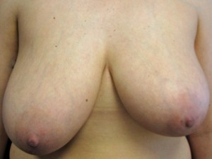 A) Before breast reduction