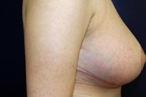 D) 2 months after breast reduction - side view