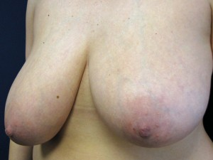 E) Before breast reduction - oblique view
