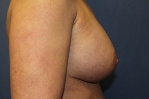 D) 13 years after breast augmentation - side view