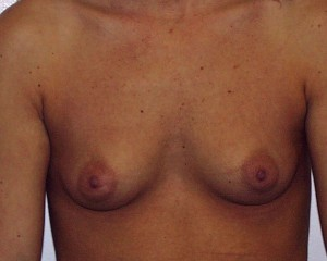 A) Before breast augmentation