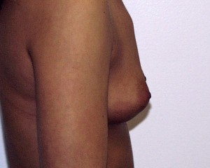 C) Before breast augmentation - side view