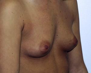 E) Before breast augmentation