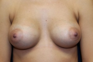 B) After breast augmentation with 280cc silicone implant
