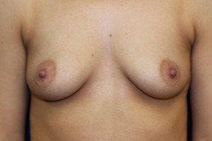 A) Before breast augmentation - frontal view