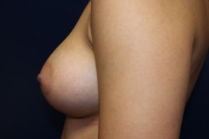 F) After breast augmentation - side view