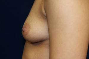 E) Before breast augmentation - side view