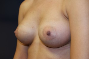 D) After breast augmentation - oblique view