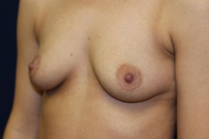 C) Before breast augmentation - oblique view