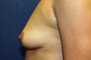 C. Before breast augmentation - side view