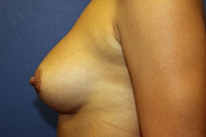 D. After breast augmentation - side view