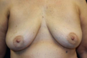 B) After implant removal - frontal view