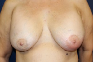 A) Before breast implant removal - frontal view