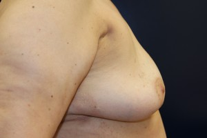 D) After breast implant removal - side view