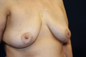 F) After breast implant removal - oblique view