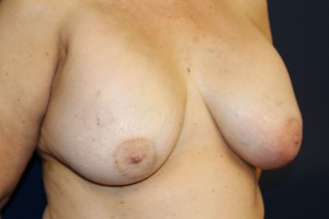 E) Before breast implant removal - oblique view