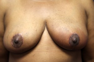 B) After breast reduction