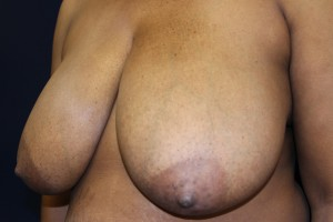 E) Before surgery - oblique view