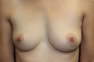 A) Significant breast size asymmetry pre-op