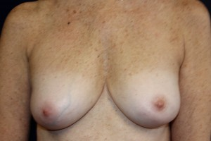 B) After breast implant removal - frontal view