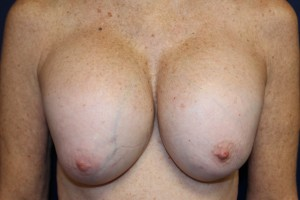 A) Deformed breasts after breast augmentation