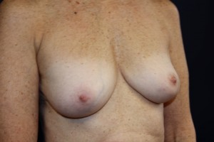 D) After breast implant removal