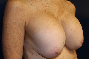 C) Before breast implant removal