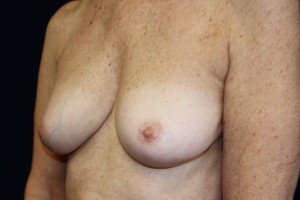 F) After breast implant removal